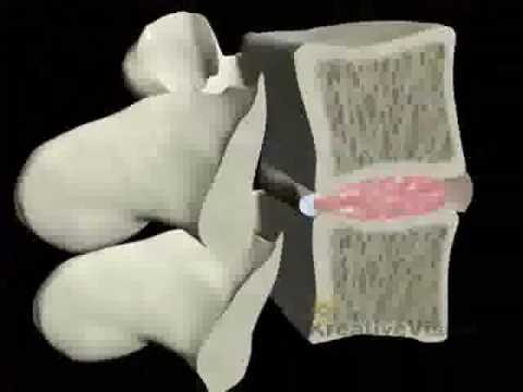 Massaggio con video osteocondrosi seno