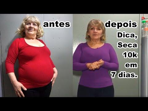Kmg pierdere în greutate hammond