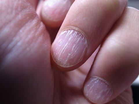 La oración del hongo sobre las uñas