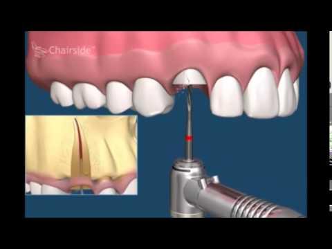Примеры удаления зубов. Сложное удаление
