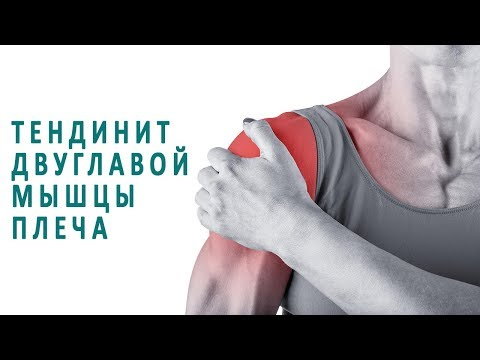 Тендинит двуглавой мышцы плеча