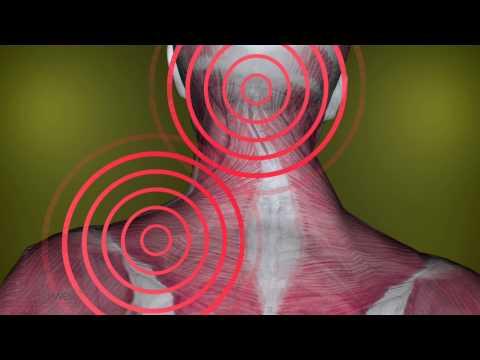 Gürtel Schmerzen im unteren Rücken
