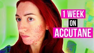 Buy accutane in Miami