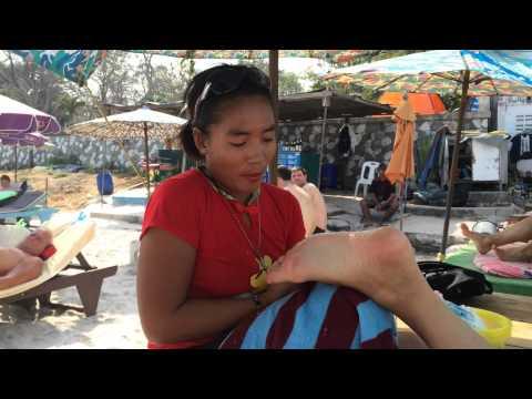 Strephexopodia วิดีโอรักษาเด็ก
