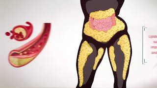 Everything You Need To Know:Lipid Profile