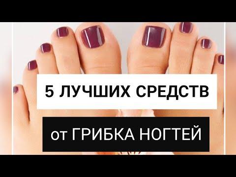 Дерматолог: 5 лучших средств от грибка ногтей
