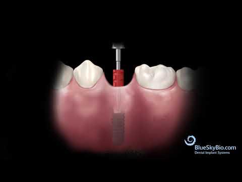 Tissue Level implant and UCLA Abutment