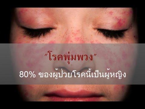 ใช้กลาก dexamethasone
