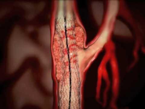 Fármacos de hipertensão no impulso de baixa