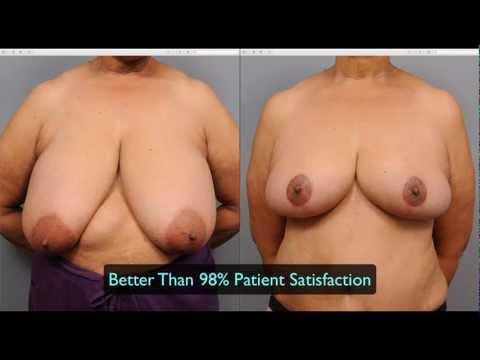 Die Trainings im Saal für die Erhöhung der Brust