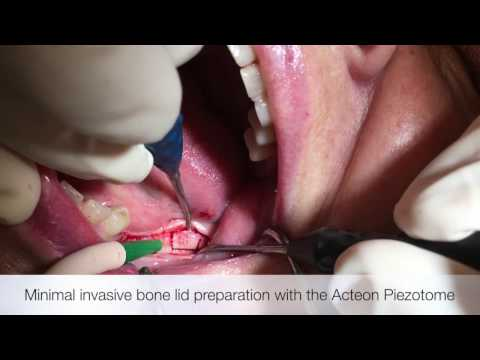 NICO Cavitation #17 combined with simultaneous zirconia implants - Dr. Dominik Nischwitz