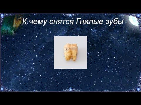 К чему снятся Гнилые зубы (Сонник)