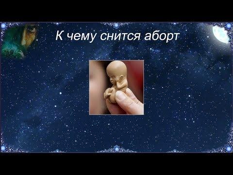 К чему снится Аборт (Сонник)