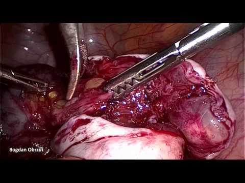 Removal of ovarian cysts