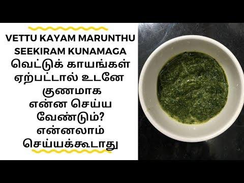 Vettu Kayam Marunthu In Tamil / Vettu Kayam Thalumbu Maraiya / வெட்டு காயம் மருந்து