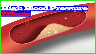 high blood pressure effect - consequences of high blood pressure