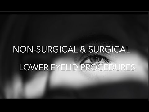 Watch Video: Non-Surgical Treatments in NYC | Botox, Fillers, Lasers, Radiofrequency Devices
