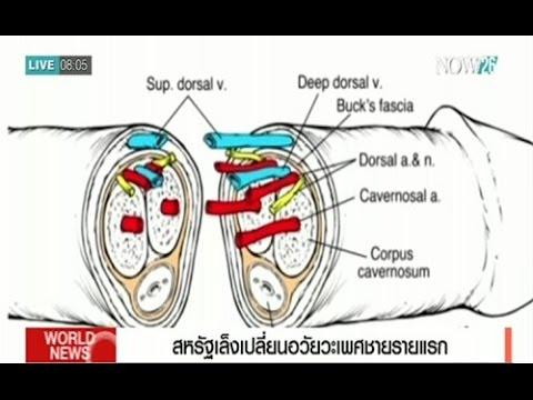 อวัยวะเพศก่อนและหลัง