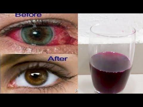 Tulburări vizuale inflamatorii