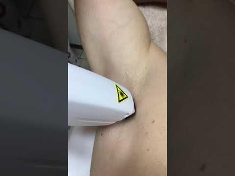Hogyan feszül a pénisz