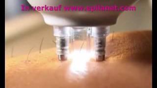 laser haarentfernung dauerhafte haarentfernung rio