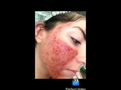 Сильное отбеливающее средство для коже
