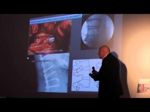 Il video aggravamento osteocondrosi cervicale
