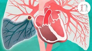 Pulmonary embolism: The route to recovery