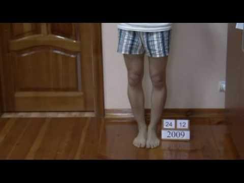 Der Nagelzwang auf dem Bein sagnoilsja die Behandlung