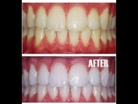 Luar Biasa Inilah Cara Ampuh Memutihkan Gigi Secara Alami