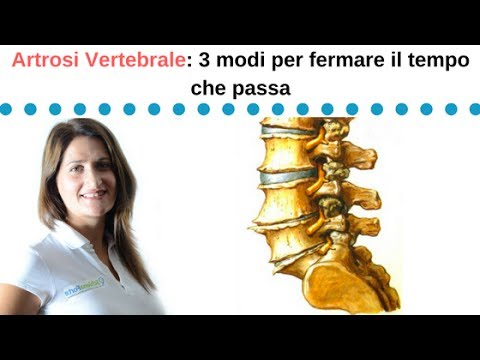 Esercizi video per rachide cervicale