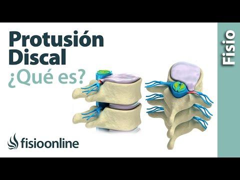 Rígidas articulaciones todos los de las articulaciones de los síntomas antes del tratamiento