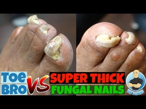 Old fungus toenails review treatment
