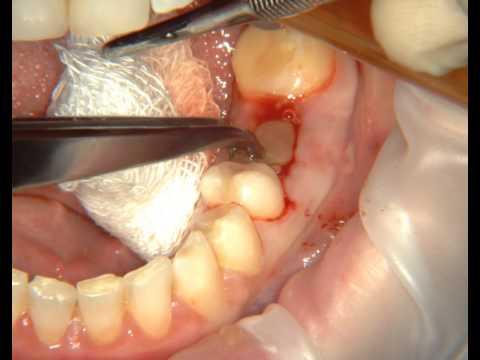 Лечение альвеолита с помощью Clot-PRF. Treatment of alveolitis with Clot-PRF.