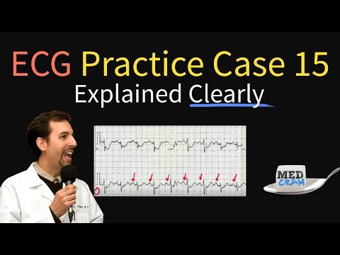 ECG / EKG Practice Case 15 - Step by Step Interpretation - YouTube