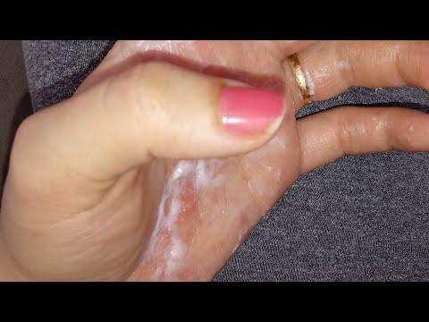 Como não se lavar no eczema