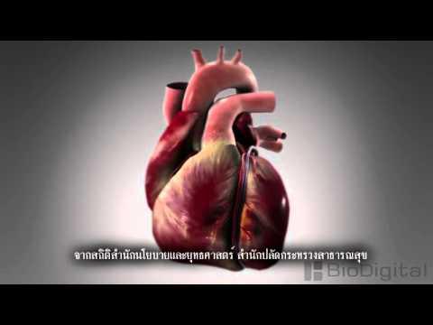 ลิ่มเลือดอุดตันที่มีภาวะเกล็ดเลือดต่ำ