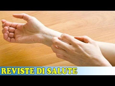 Mancanza di eczema di vitamina