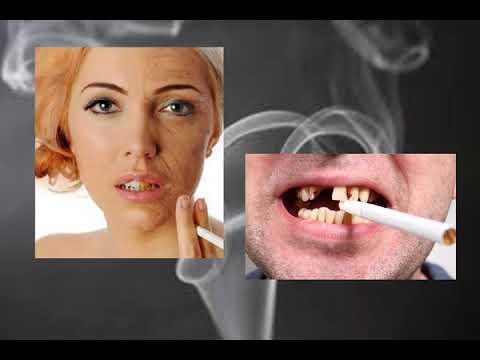 Nikotin tabletták a dohányzás árához
