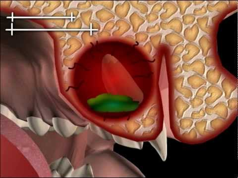 Koxarthrose Hüften 1 Stufe und Behandlung