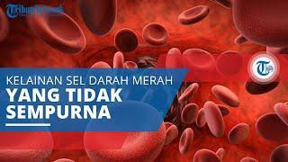 Mielodisplasia, Kelainan yang Disebabkan Sel Darah Terbentuk secara Tak Sempurna atau Disfungsional