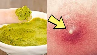 How To Get Rid Of Boils On Inner Thighs And Buttocks - 3 Remedies To Get A Boil To Pop Overnight