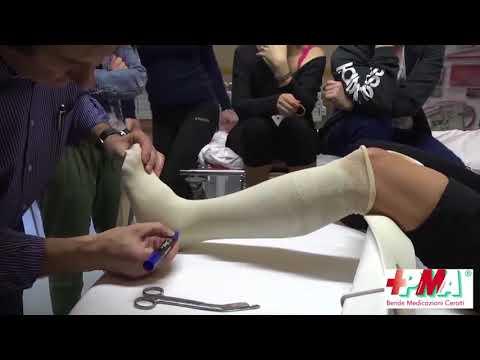 Israele articolazioni trattamento della psoriasi