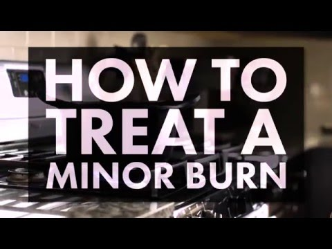 Video How to Treat a Minor Burn
