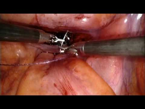 RS-RARP part 9 Packing & Closure of Peritoneal Incision