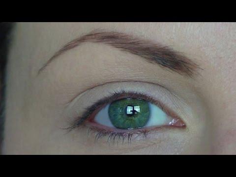 I cerchi sotto occhi quello che può essere una malattia