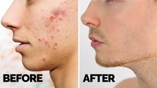 How To Get Rid Of Acne & Pimples Quickly - Mens Clear Skin Hacks 2019
