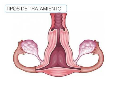 Renal cancer nursing diagnosis