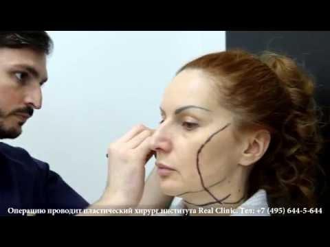 Интересные факты о морщинах на лице