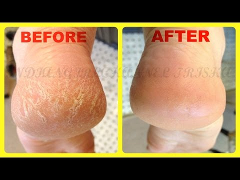 Video Home Remedies for Cracked Heels /remove cracked Hills fast & easyly at home